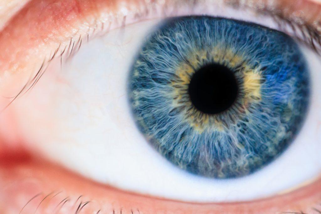 iridologie iridologue naturopathie yeux bleus exemple bilan iridologique